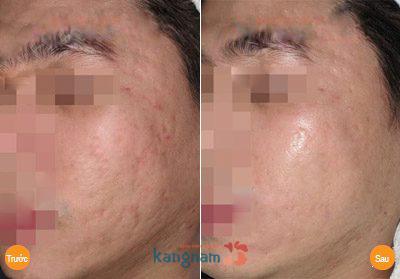 Hình ảnh trước và sau trị sẹo lõm1111