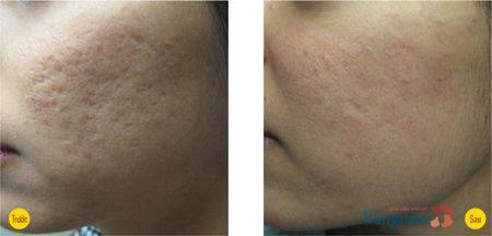 Hình ảnh trước và sau trị sẹo lõm9999