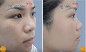Hình ảnh trước và sau trị sẹo thâm