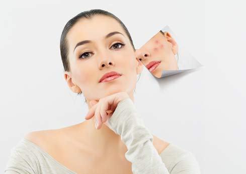 Bật mí cách trị sẹo thâm trên da mặt với gừng tươi3