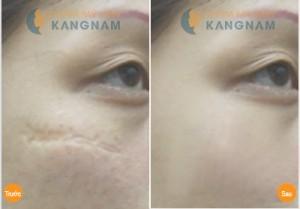 Hình ảnh trước và sau trị sẹo lõm