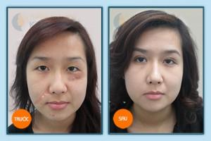 Hình ảnh trước và sau trị sẹo lồi