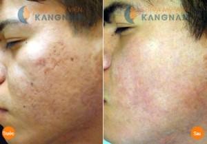 Trước và sau trị sẹo mụn