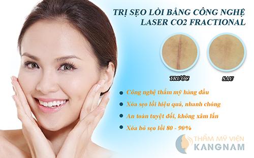 Cách trị sẹo lồi trên mặt hiệu quả nhất bằng Laser Co2 Fractional