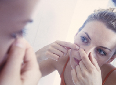 Hạn chế nặn mụn bừa bãi giúp tránh để lại sẹo mụn