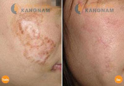Cách trị sẹo thâm lâu năm ở chân hiệu quả nhất?3