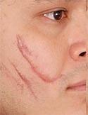 Cách nào chữa sẹo lồi hiệu quả và không cần phẫu thuật?
