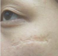 Cấy da siêu vi điểm có trị được sẹo lõm kích cỡ lớn và sâu không?
