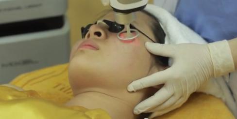Giải pháp điều trị sẹo lõm hiệu quả - Nhận định của chuyên gia 6