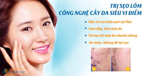 Hiệu quả bất ngờ từ CN trị sẹo lõm cấy da siêu vi điểm tại Kangnam 1