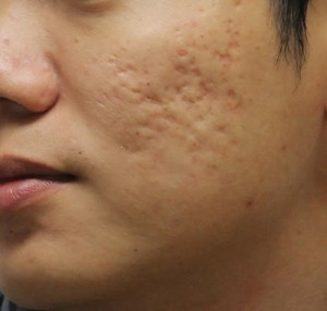 Sau khi trị sẹo mụn bằng kim lăn da có bị mỏng không?