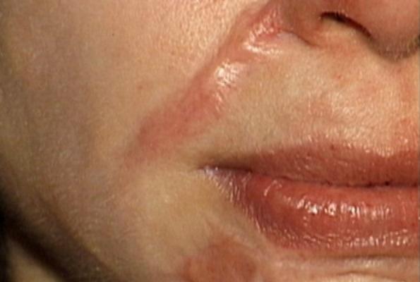 """""""Bày cách"""" trị sẹo lồi trên mặt không phải phẫu thuật 1"""