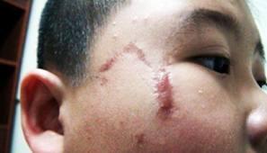 """""""Bày cách"""" trị sẹo lồi trên mặt không phải phẫu thuật 2"""