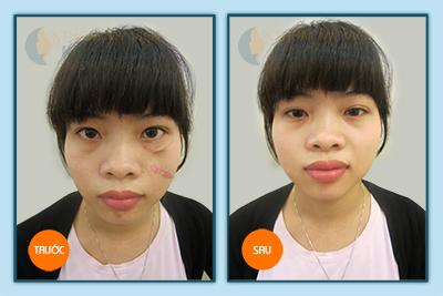 """""""Bày cách"""" trị sẹo lồi trên mặt không phải phẫu thuật 5"""