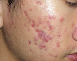 Có cách nào trị sẹo thâm hiệu quả trong thời gian ngắn không?
