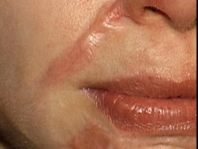 Điều trị sẹo lồi hiệu quả triệt để chỉ với liệu trình ngắn 1