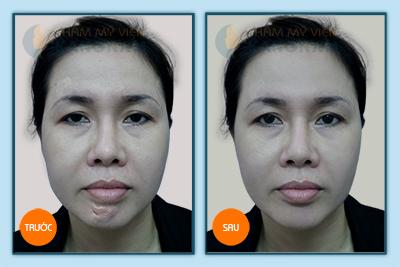 Điều trị sẹo lồi hiệu quả triệt để chỉ với liệu trình ngắn 5