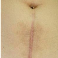 Laser Co2 Fractional có điều trị được sẹo lồi sau phẫu thuật không?