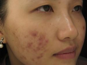 Có cách nào trị sẹo mụn và vết thâm hiệu quả nhanh chóng không?