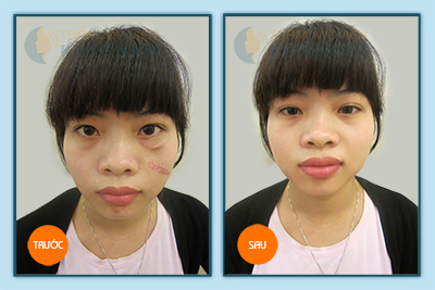 Đã có cách trị sẹo lồi trên da mặt: triệt để - an toàn – tiết kiệm thời gian 4