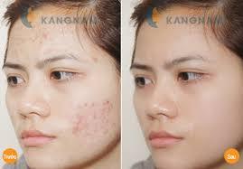 Đi tìm giải pháp trị sẹo mụn và vết thâm trên mặt triệt để 4