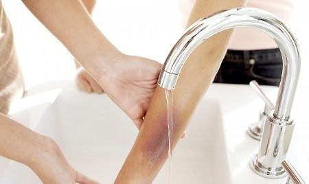 Giải pháp hữu hiệu giúp bạn trị sẹo thâm do bỏng bô xe máy 3