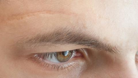 Trị sẹo lõm trên mặt bằng cách làm thông thường không hiệu quả