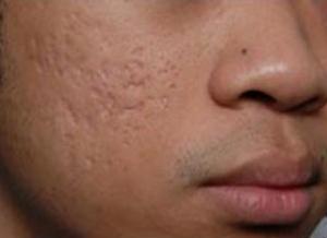 Phương pháp nào điều trị sẹo rỗ hiệu quả cao nhất?