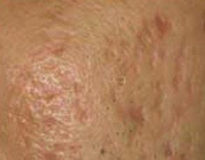 Cách nào trị sẹo rỗ do mụn để lại nhanh chóng và triệt để?