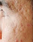 Cách nào trị sẹo rỗ trên mặt hiệu quả nhanh chóng?