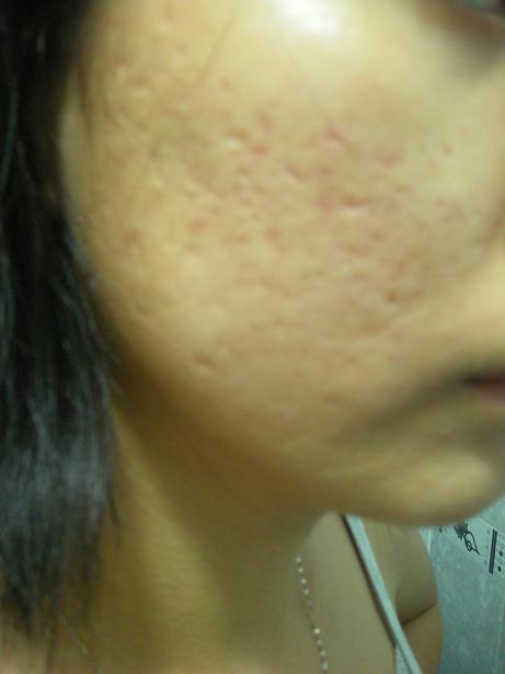 Cách hay trị sẹo rỗ trên mặt tại nhà với trái dứa 1