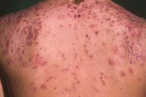 Có cách nào trị sẹo mụn ở lưng mang lại kết quả triệt để?