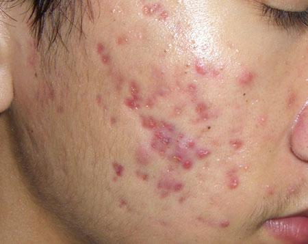 Công nghệ Peeling – Giải pháp điều trị sẹo thâm sau mụn triệt để 1