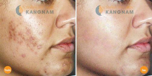 Công nghệ Peeling – Giải pháp điều trị sẹo thâm sau mụn triệt để 2