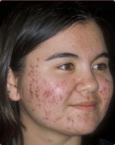 Công nghệ Peeling – Giải pháp điều trị sẹo thâm sau mụn triệt để
