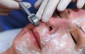 Thuốc trị sẹo mụn có thực sự là giải pháp điều trị hiệu quả? 11