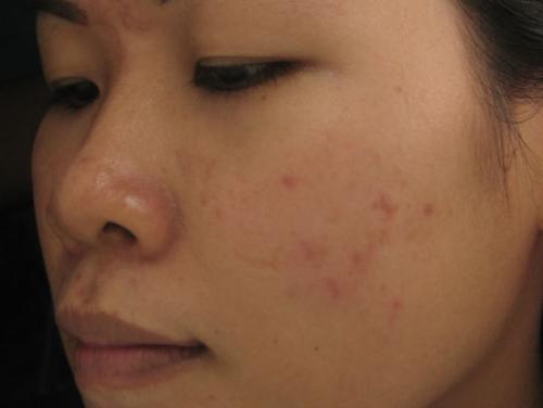 Top 4 cách trị sẹo mụn bằng thảo dược hiệu quả 1