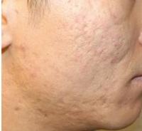 Cách làm mặt nạ trị sẹo rỗ hiệu quả bất ngờ