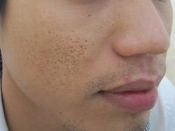 Bày cách trị sẹo mụn hiệu quả cho làn da tươi sáng tự nhiên 2
