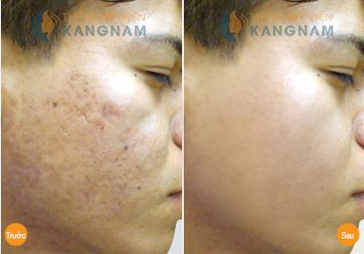Bày cách trị sẹo mụn hiệu quả cho làn da tươi sáng tự nhiên 4