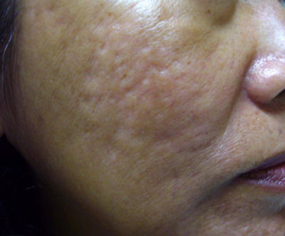 Kết quả bất ngờ với giải pháp điều trị sẹo lõm, sẹo rỗ không đau 2