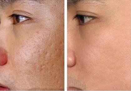 Kết quả bất ngờ với giải pháp điều trị sẹo lõm, sẹo rỗ không đau 5