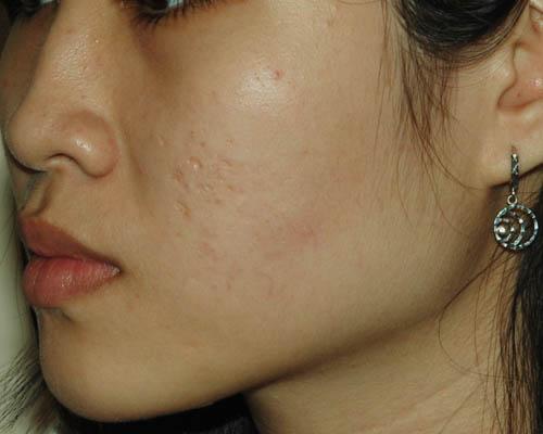 Kinh nghiệm điều trị sẹo lõm đúng cách 2