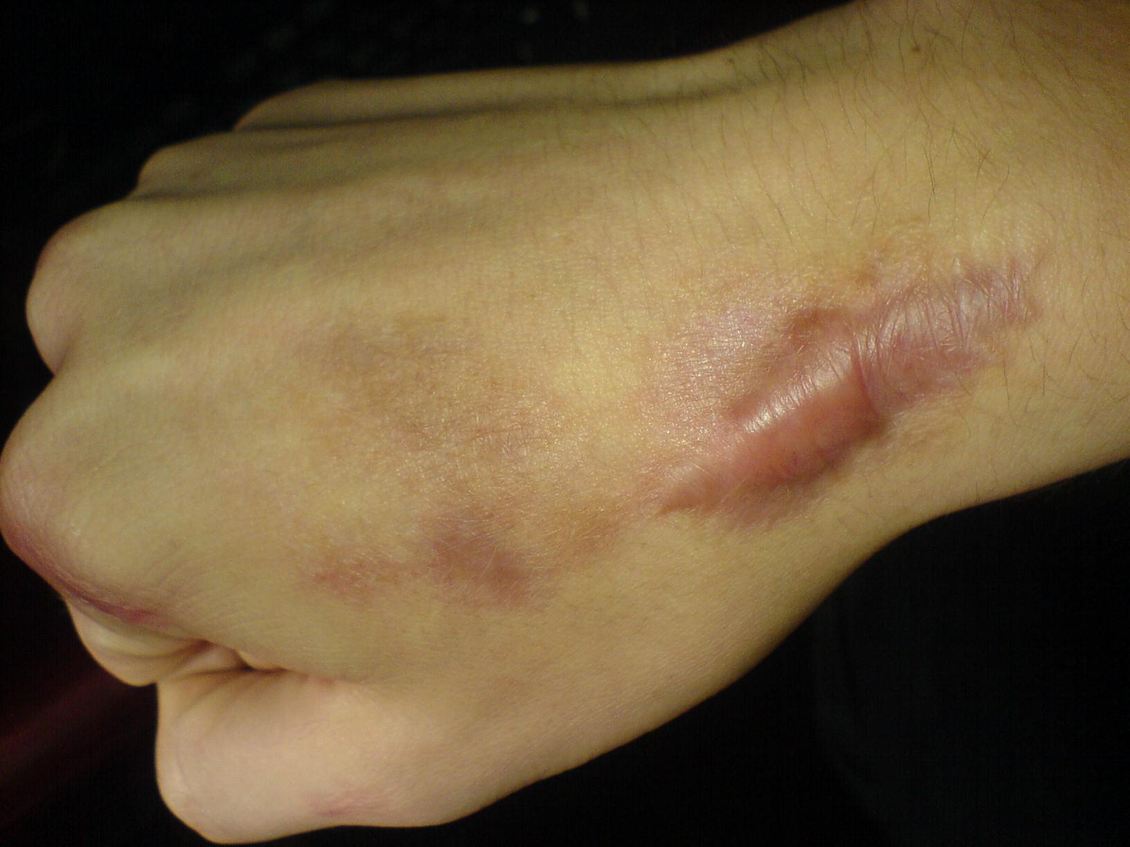 phan biet cac loai seo loi va giai phap dieu tri 2 Phân biệt các loại sẹo lồi và cách điều trị