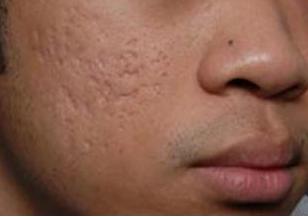 Phương pháp điều trị sẹo rỗ, sẹo lõm cho nam giới triệt để