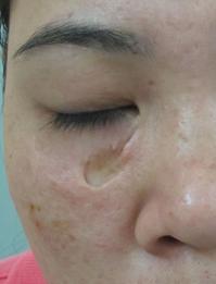Sẹo lõm trên mặt từng khiến tôi tuyệt vọng vì không tìm được các chữa trị hiệu quả