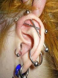 Bấm khuyên tai bị sẹo lồi, có cách nào chữa trị không?