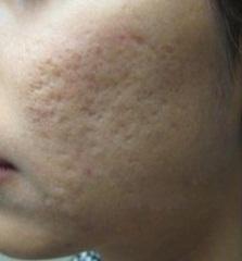 Bị sẹo lõm do trị tàn nhang không đúng cách, điều trị thế nào?