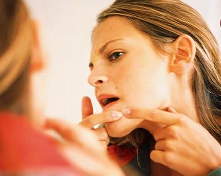 Khi bị sẹo lõm do mụn bạn cần tránh điều gì? 3