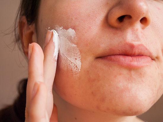 Khi bị sẹo lõm do mụn bạn cần tránh điều gì? 4